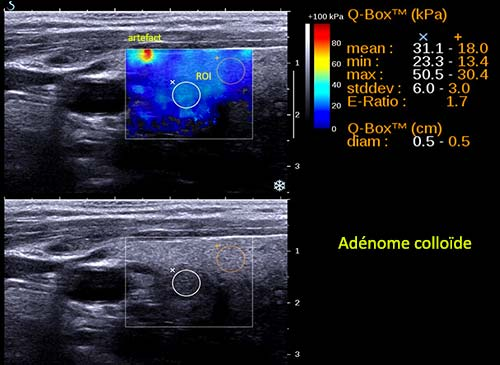 Ondes de cisaillement – Aixplorer : adénome colloïde. Indice de rigidité faible.