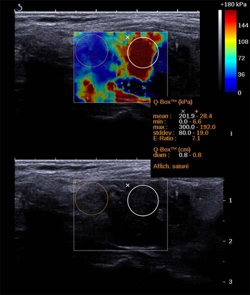 Ondes de cisaillement – Aixplorer : cancer papillaire. Indice de rigidité élevé.