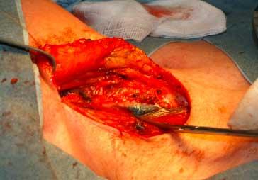 Vue opératoire du ganglion marqué au charbon colloïdal (au-dessus de l'extrémité du ciseau de dissection)